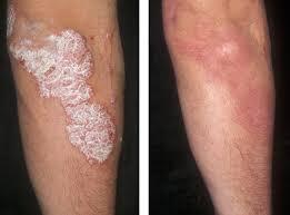 Проявления псориаза до и после применения тиосульфата натрия