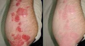 «Фото результатов лечения Нано гелем