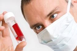 Анализ крови на выявление хорионического гонадотропина человека