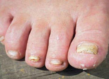 Как лечить грибок ногтей на ногах яблочным уксусом
