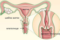 Эрозия шейки матки - причина кровотечений
