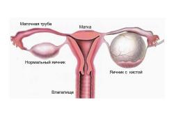 Киста яичников - причина слизистых месячных