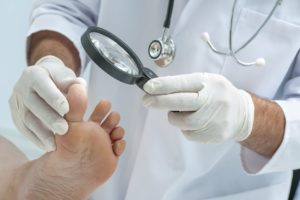 Стационарное лечение везикулярного грибка стопы