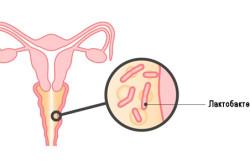 Бактериальный вагиноз - причина выделений
