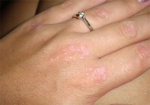 Псориаз на руках может проявиться в любом возрасте