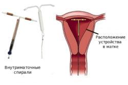 Спираль в матке - одна из причин кровянистых выделений перед месячными