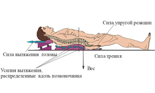 Схема вытяжения позвоночника