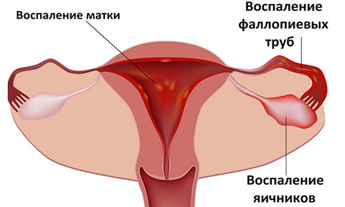 Виды воспалений у женщин