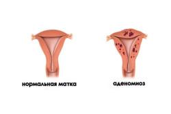 Аденомиоз тела матки