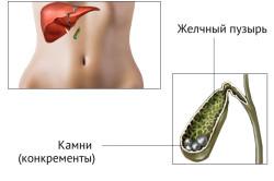 Желчнокаменная болезнь - причина панкреатита
