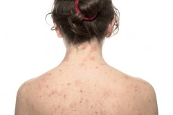 Сыпь при аутоиммунных заболеваниях
