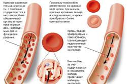 Структура крови с железодефицитной анемией