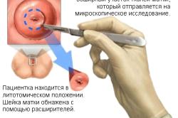 Проведение клиновидной биопсии шейки матки