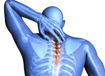 Причины появления, симптомы и лечение грудного хондроза
