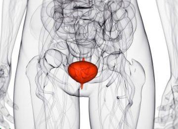 Признаки и лечение воспаления мочевого пузыря у женщин