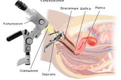 Кольпоскопия для диагностики полипа цервикального канала