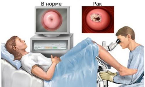 Необходимость кольпоскопии шейки матки