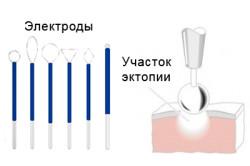 Схема диатермокоагуляции