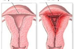 Схема эндометриоза матки