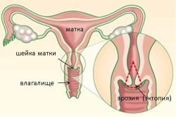 Схема эрозии шейки матки
