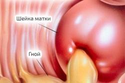 Гонорея как причина коричневых выделений при менструации