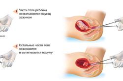 Хирургический аборт
