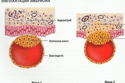 Фазы имплантации эмбриона в матку