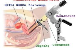Кальпоскопия шейки матки при ВПЧ
