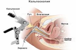 Кольпоскопия при обследовании на ВПЧ