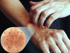 контактный дерматит лечение народными средствами фото