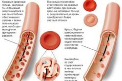 Кровь человека с железодефицитной анемией