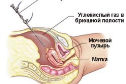 Схема лапароскопии матки
