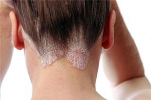 лечение псориаза волосистой части головы