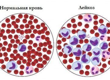 Характерные особенности развития хронического лимфоцитарного лейкоза