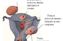 Схема миомы при беременности