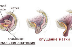Схема опущения шейки матки