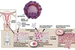 Схема вируса папилломы человека на шейке матки
