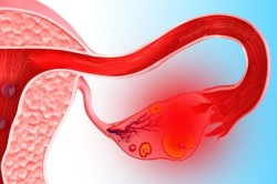 Боль в нижней части живота при патологиях яичников