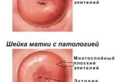 Шейка матки в норме и при патологии