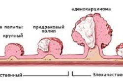 Схема расположения полипа матки