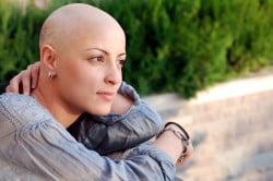 Выпадение волос - последствие химиотерапии