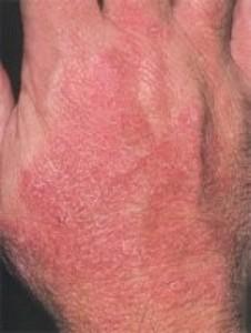 простой контактный дерматит - причины