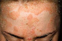 Вид больного с псориазом на лице