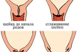 Схема раскрытия шейки матки