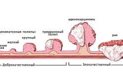 Полип шейки матки - причина развития рака