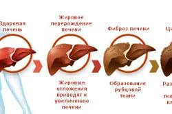Стадии развития плоскоклеточного рака