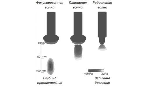 Ударные волны генерируются разными аппаратами, в связи с чем выделяют различные типы волн