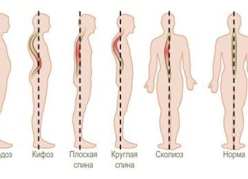 Диагностика и лечение усиленного кифоза грудного отдела позвоночника
