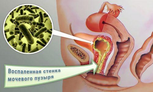 Заболевания шейки матки