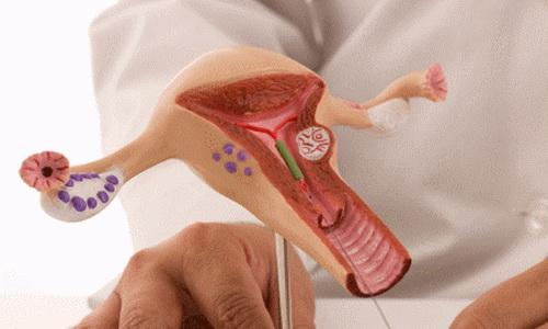 Гипоплазия эндометрия как частое женское заболевание